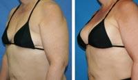 Testimonianza prodotto per aumento volume del seno